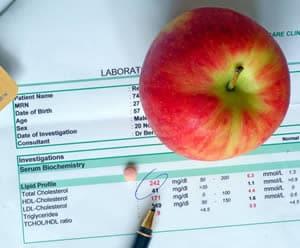Apple on lab paperwork